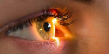 Θυρεοειδική οφθαλμοπάθεια - Εξόφθαλμος