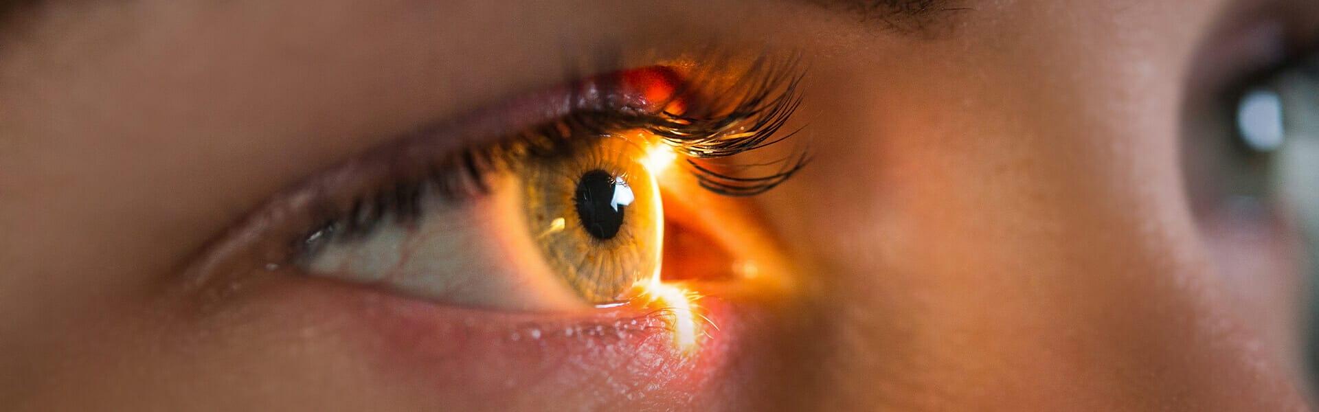 Θυρεοειδική Οφθαλμοπάθεια - Αίτια, Συμπτώματα & Αντιμετώπιση