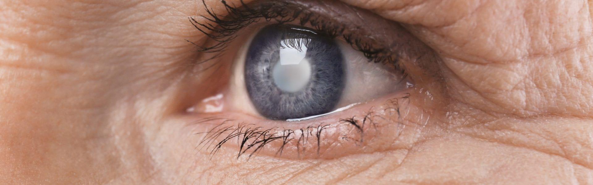 Αίτια, συμπτώματα και θεραπεία για τους όγκους του κόγχου στα μάτια