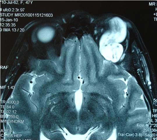 ΟΓΚΟΙ ΚΟΓΧΟΥ - Λέμφωμα αριστερού οφθαλμικού κόγχου. Μαγνητική τομογραφία.